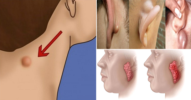 Do You Have A Lump On Your Neck Or Behind Your Ear, Don't Ignore It