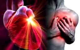 Infarto corazón miocardio