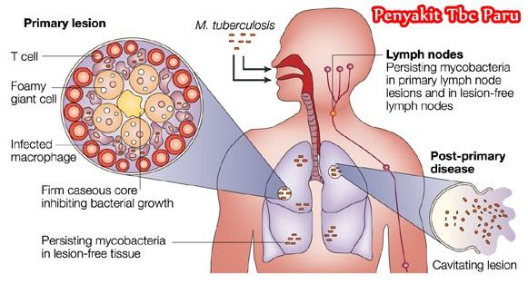 Cara Mudah Mengobati Tbc Paru Secara Alami Terbukti Manjur