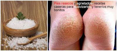 PIES-RESECOS-AGRIETADOS