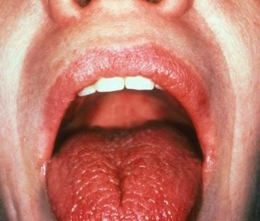 Obat Alami Xerostomia