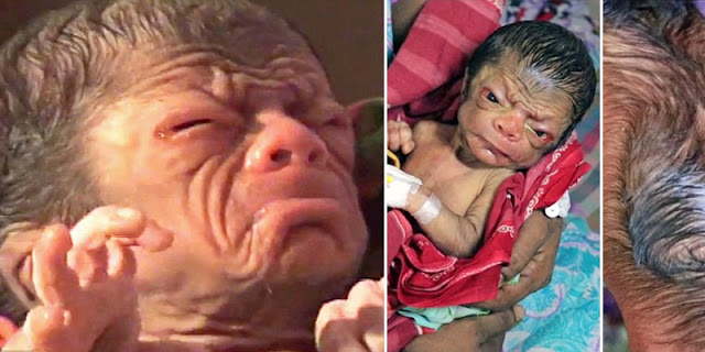 Meet The Newborn Tinny Boy Who Looks Like An 80-Year-Old
