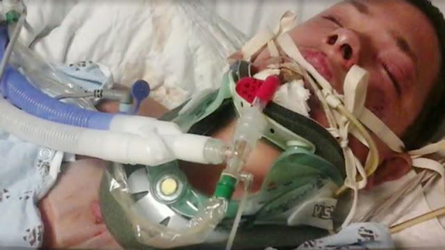 Hospitalizan a joven después que cigarrillo electrónico le explotó en la cara