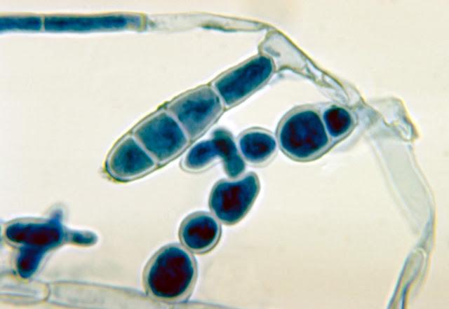 Contoh penampakan jamur Epidermophyton floccosum, dari divisi Deuteromycotina