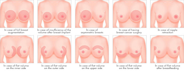 SmartPrep2 Breast Surgery For A Natural Breast Wonjin Plastic Surgery