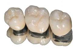 jamnagar dentist pfm crown