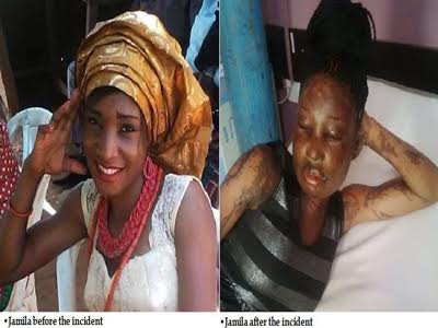abuja acid attack victim
