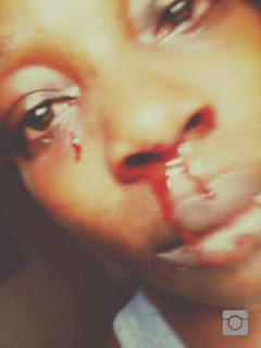 Actress April Joju Muse Kicks against Sibling Abuse After Been Beaten up by her Younger Brother