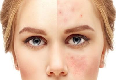 Éliminer l'acné avec de la vodka