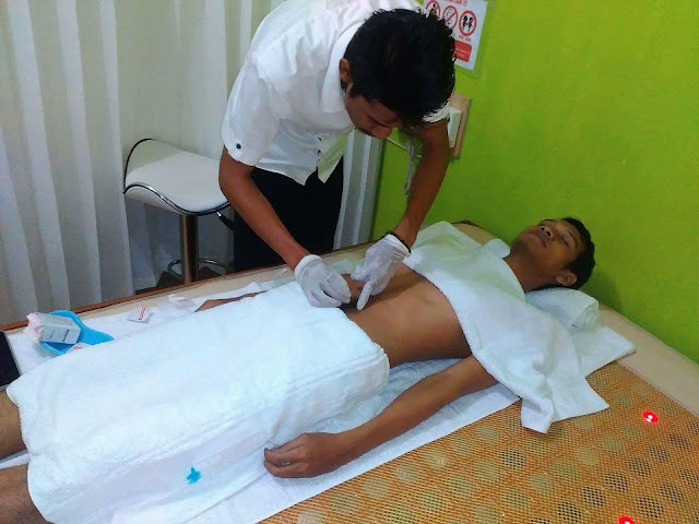 Akupunktur Spesialis Infertilitas Pria di Klinik Holistik Elif Medika