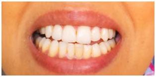 aclarar los dientes amarillos en casa.