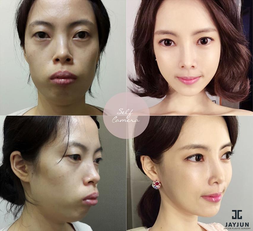 korean plastic surgery lipstick alley