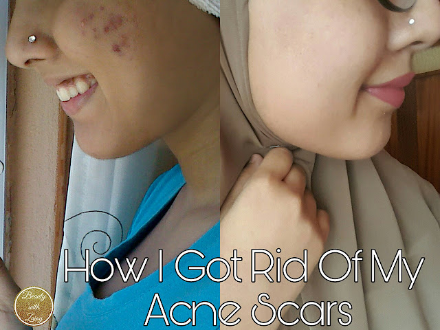 how to, acne, acne scars, cystic acne, how to get rid of acne scars, acne scars pictures, acne pictures, hijabi, skincare, skincare pictures, facials, masks, home made masks, oatmeal mask, honey mask, derma roller, derma roller pictures, accutance, home made, facial pictures, mask pictures, beauty, skincare masks,