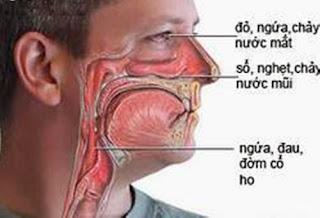 Triệu chứng và cách phòng ngừa viêm mũi dị ứng