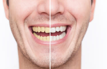 http://www.ultimatecosmeticdentalcenter.com/Teeth_Whitening.php