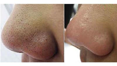 Masque visage au curcuma pour lutter contre les points noirs