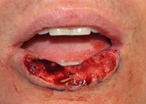 Cara Menyembuhkan Kanker Mulut Secara Alami
