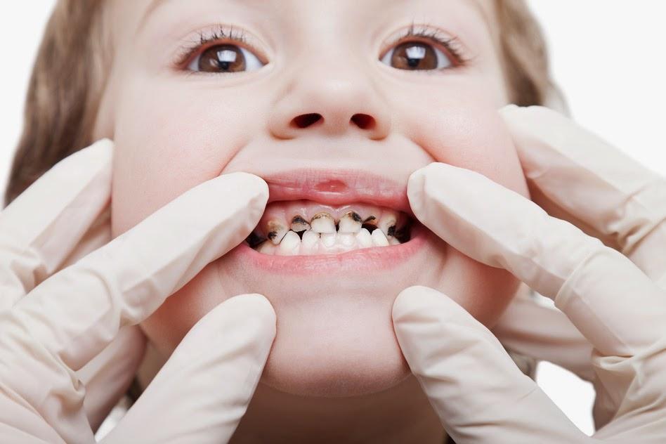 Image result for gigi anak hitam