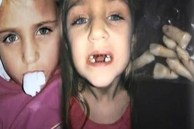 صوّرت ابنتها خفية عند طبيب الأسنان.. وما فعله بالصغيرة كارثة! ما اكتشفته مفزع حقاً! تصرفات مشبوهة وكان يستغل حالة مرضاه ..
