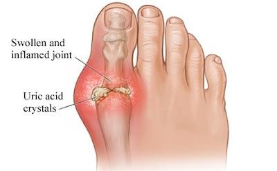 Ayurvedic Medicines For Gout