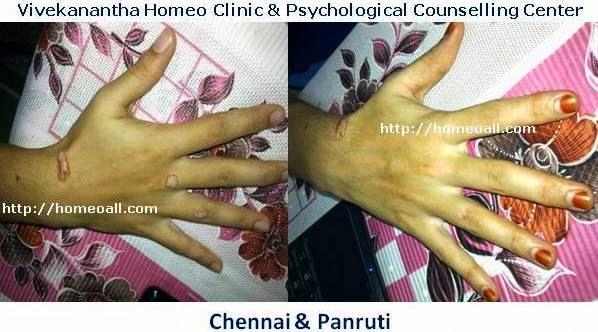 Anal genital, penis hpv human papilloma virus treatment specialty  Vivekanantha homeopathy clinic & psychological counseling center, Velachery, Chennai, panruti, cuddalore, Pondicherry, villupuram, Dr.senthil kumar best homeopathy specialist & famous psychologist in tamilnadu, india,