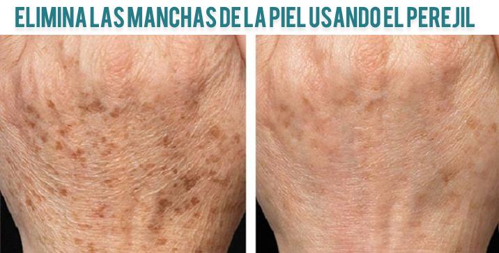 Como eliminar las manchas de la piel usando perejil y limon - Rodillo para lacar ...