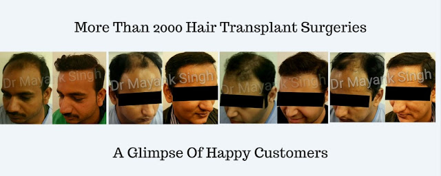 Why hair transplant surgery is done?