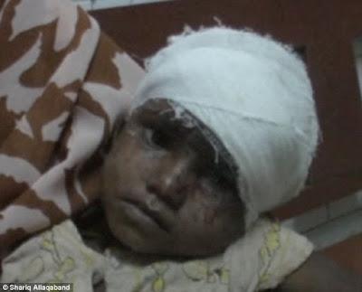 Užas: Majka pokušala jesti živo dijete otkidajući dio glave.
