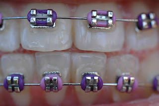 Brackets John A Gerling DDS in McAllen TX