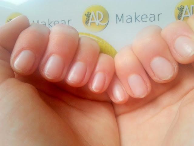 paznokcie po noszeniu lakierow hybrydowych