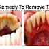 Save Yourself From Expensive Dental Treatments; A Home Remedy To Remove TARTAR
