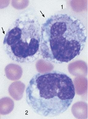 Sepsis with toxic granulation, cytoplasmic vacuoles,  and Döhle bodies (arrows) in band cells (1) and a monocyte (2).