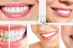 Cara Sehat Memutihkan Gigi