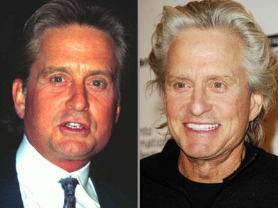 Male Celebrity Plastic Surgery
