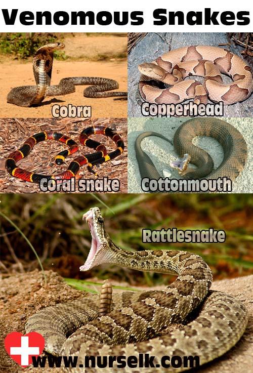 Snake Bites   Nurselk com