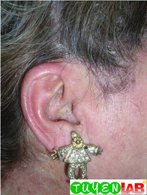 Dried drainage at the opening of the external ear canal in a girl with otitis externa