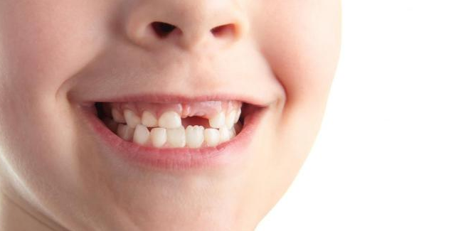 cara merawat gigi keropos