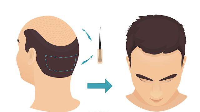 السياحة العلاجية في تركيا  - زراعة الشعر