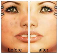 Acne Treatment by Home Base Care Facial:
