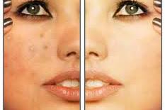 Face Acne Treatments | 20 Acne Skin Care Tips