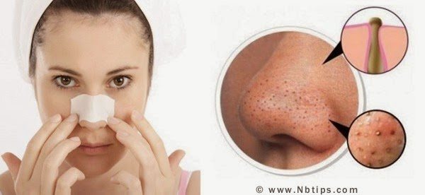 http://www.nbtips.com/2015/03/Natural-beauty-tips-to-remove-blackheads-quickly.html