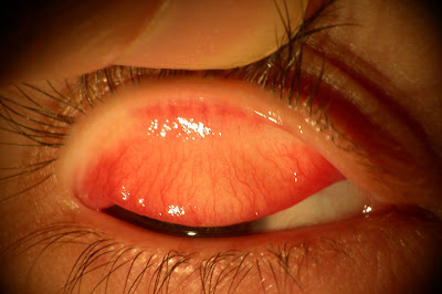 What is Giant Papillary Conjunctivitis - Definition, Symptoms, Causes, Treatment
