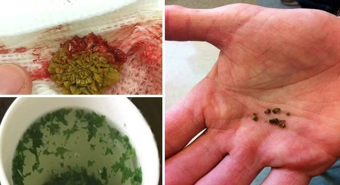 Clean Your Kidneys In 5 Minutes Using This Natural Drink