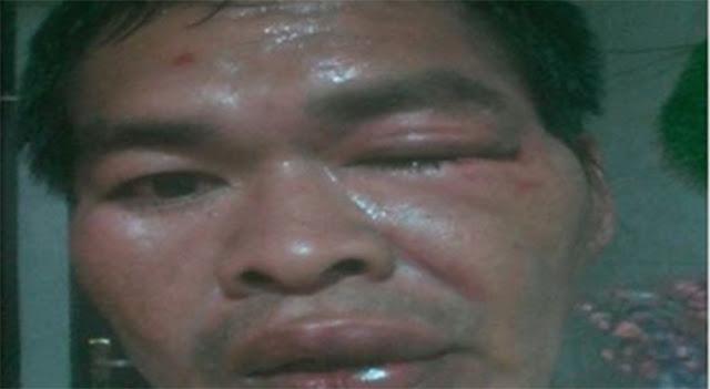 Duh, KO Duel Satu Lawan Satu, Kader PDIP Tuduh Dikeroyok FPI