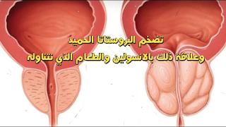 الاستروجين والانسولين وعلاقتمهما بتضخم البروستاتا الحميد طرق طبيعية لعلاج أسباب تضخم البروستاتا الحميد