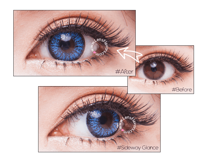 venus eye blue before after