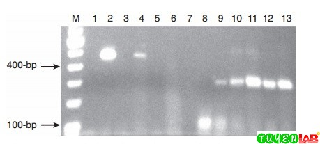 Ethidium bromide–stained polymerase chain reaction (PCR) amplicons separated in an agarose gel.