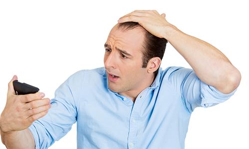 نظم الشعر: بديل للعلاجات الجراحية لزراعة الشعر