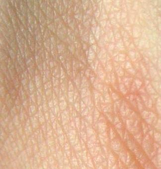 Imagen de piel por fuera a color