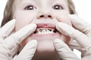 Triệu Chứng Sâu Răng - Quá Trình Tiến Triển Sâu Răng